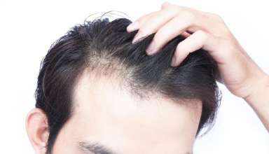 Male Or Female Pattern Baldness Symptoms & Treatment