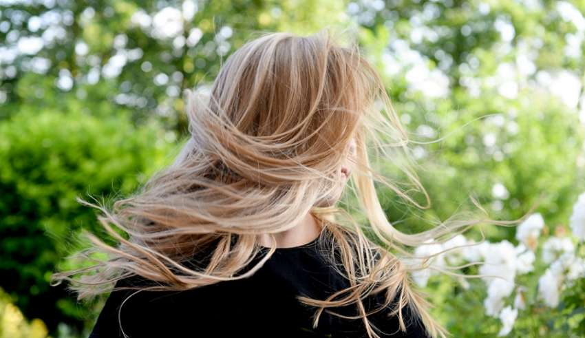 What causes female hair loss at temples