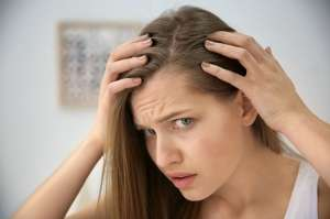 Front Hair Loss Female Remedy