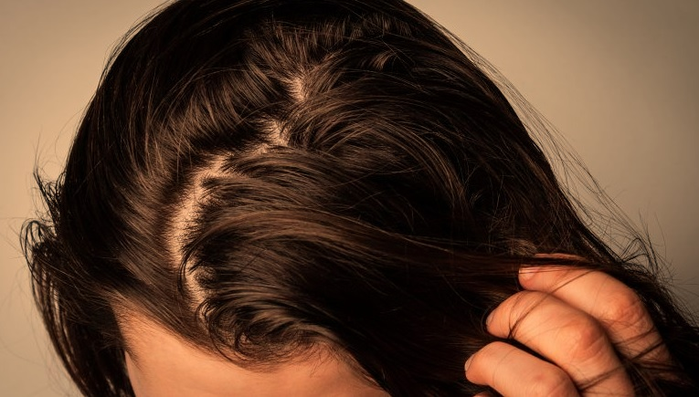 Get Rid of Oily Hair Forever