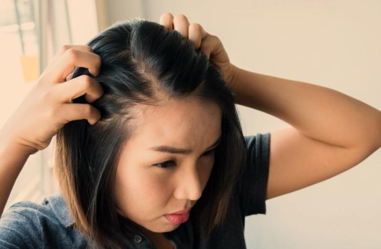 Major problem of hair loss